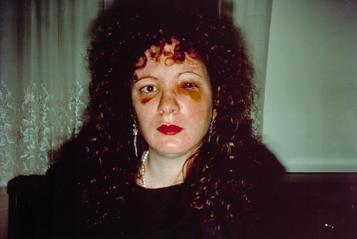 Nan one month after being battered - Nan Goldin (1984) - controversial images