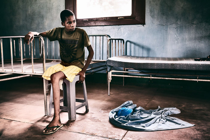 Photojournalism portrait of a boy whose leg had to be amputated.