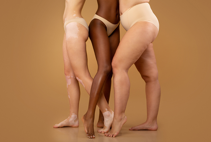 Tree women with different race and body sizes posing with a step forward.