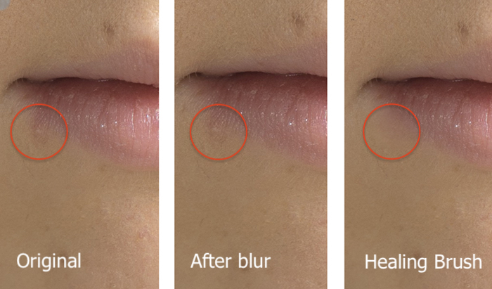 Triptych comparison of two methods of retouching blemishes in Photoshop